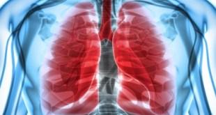 infeksi saluran pernafasan