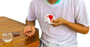 Terapi Antibiotik Baru Untuk Resistensi Tuberkulosis Paru disetujui FDA