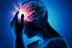 Erenumab, Obat Baru Pencegah Migrain dengan Terapi Berbasis Genetik