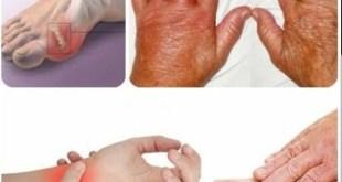 Mengenal Baricitinib, Obat Baru untuk Rheumatoid Arthritis