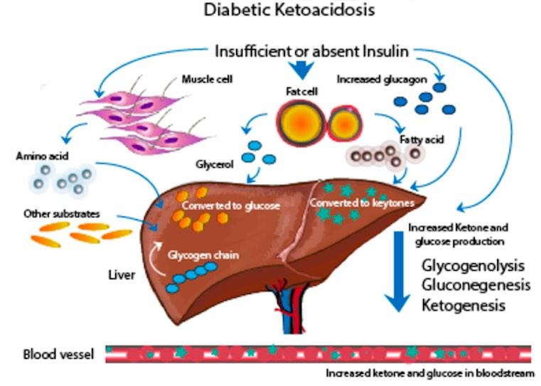 Mengenal Beta Keton, Penanda Diabetes Tipe 1 pada Sensor Elektrokimia