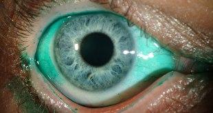Sejarah dan Formulasi Lifitegrast, Obat Baru untuk Sindrom Mata Kering