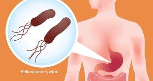 3 Kombinasi Obat Baru untuk Infeksi Helicobacter Pylori Disetujui FDA