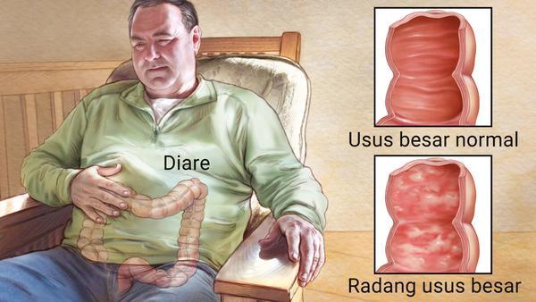 Bezlotoxumab, Antibiotik Baru Radang Usus karena Infeksi Clostridium diffiile