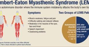 Tablet Firdapse (Amifampridine), Terapi Baru Sindrom Lambert-Eaton Myasthenic