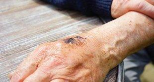 Perawatan Luka Baru dengan Hidrogel Aktifkan Kekebalan Tubuh untuk Kurangi Bekas Luka