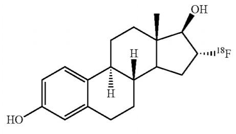 Cerianna (Fluoroestradiol F18), Agen Pencitraan Baru Kanker Payudara Metastatik