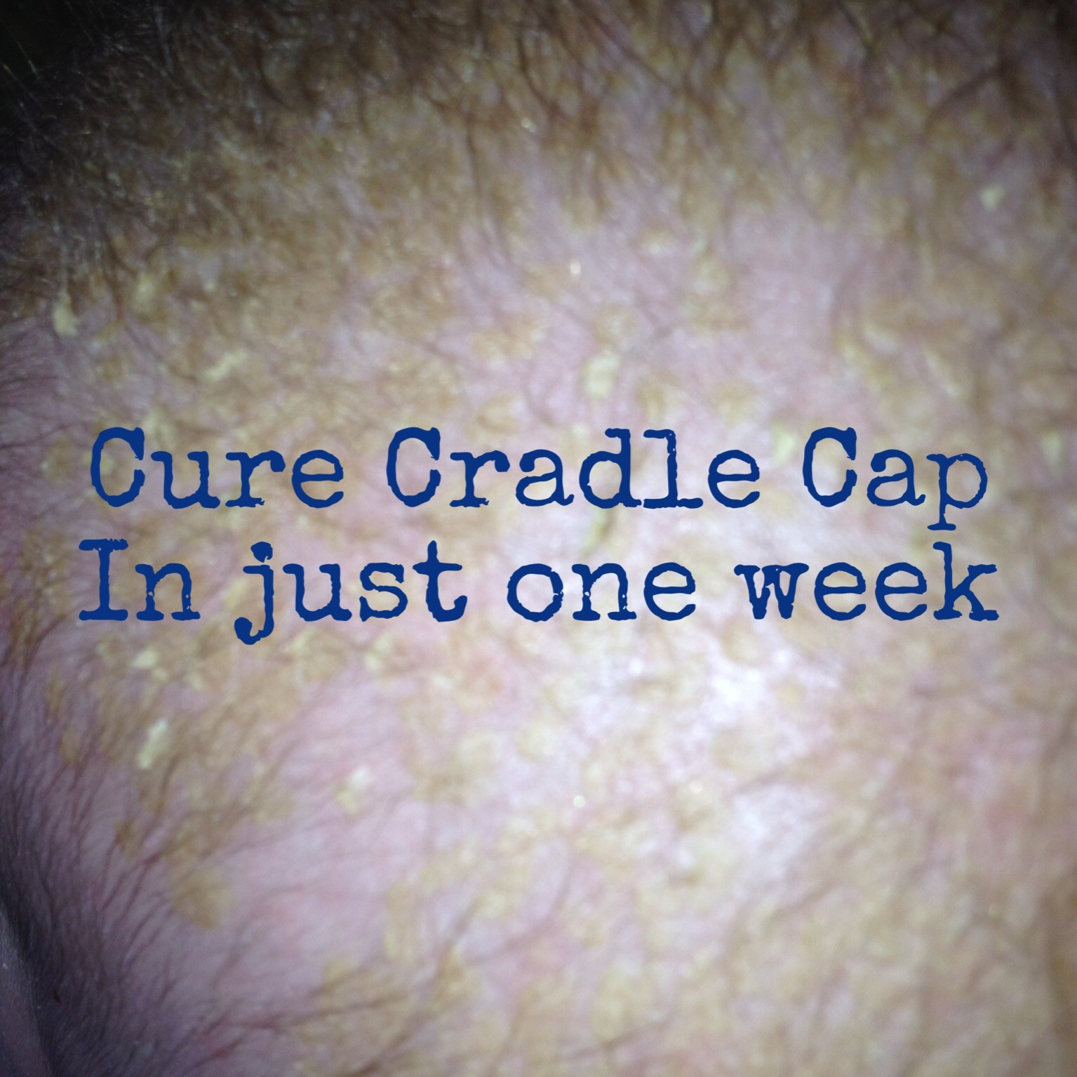Cure Cradle Cap In Just One Week Farmer S Wife And Mummy