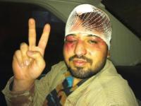 یک بسیجی فضول در شیراز بشدت کتک خورد