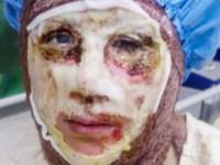 سه دختر جوان دیگر، قربانی اسید پاشی در اصفهان شدند و یکی از آنان جان سپرد