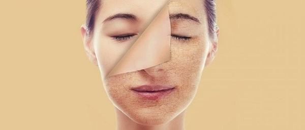 Типы кожи: Сухая кожа