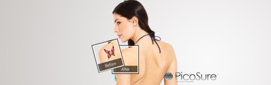 tattoo-removal-image