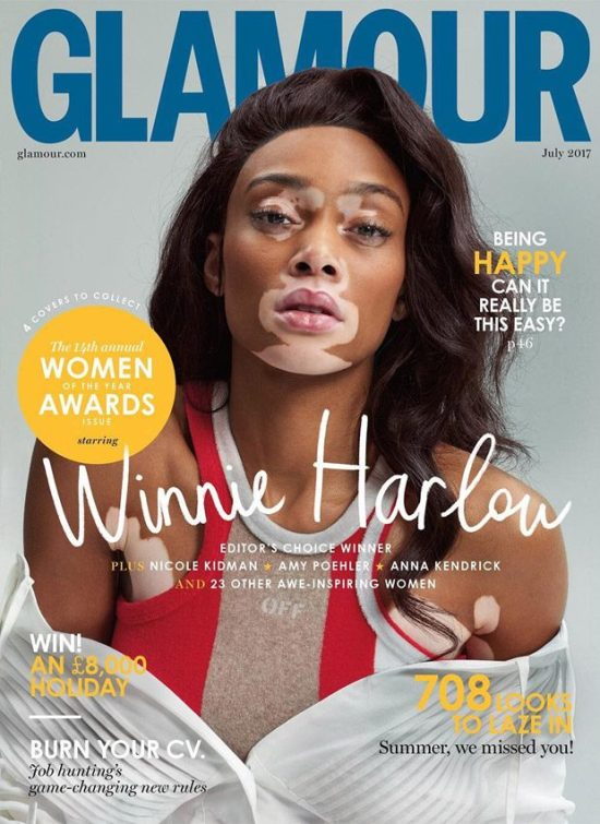 Winnie-Harlow-Glamour-UK-July-2017-620x851