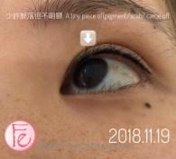 eyeliner tattoo progress