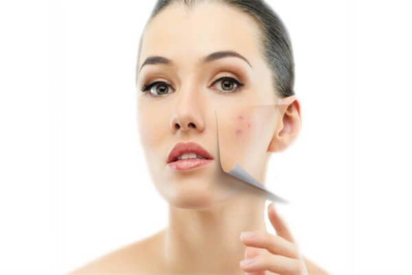 Reducing blemishes