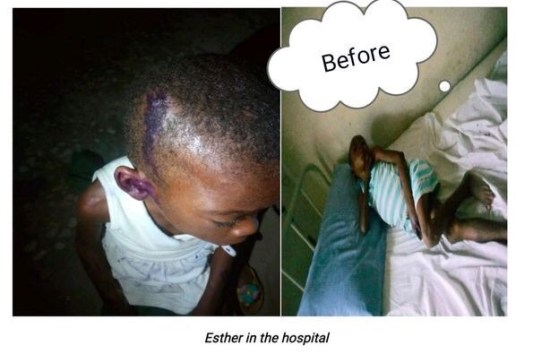 Esther In the Hospital