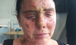 Carla Whitlock Acid Attack Victim