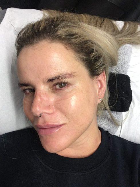 Pixie Tenenbaum Nu Derm Facial After