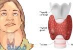 تحليل هرمونات الغدة الدرقية