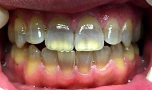 テトラサイクリン歯の症例