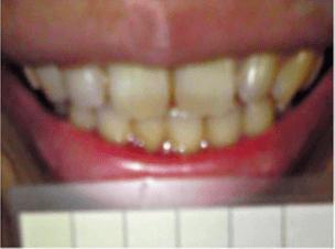 ホワイトニング前の歯