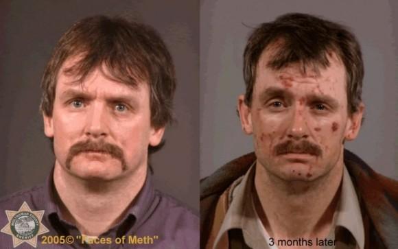 Faces Of Meth 4