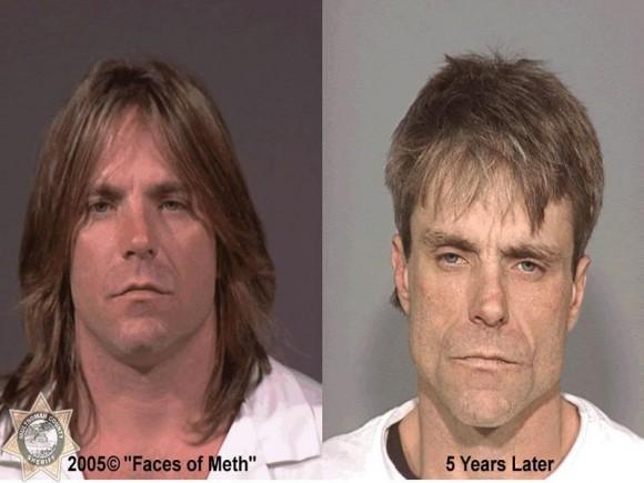 Faces Of Meth 7