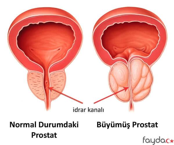 Prostatın belirtileri