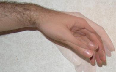 Сильная тряска организма. Внутренняя дрожь в теле — причины и лечение. Причины патологического тремора