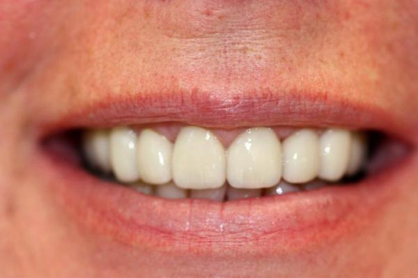Металлокерамические зубы. Протезирование зубов ...