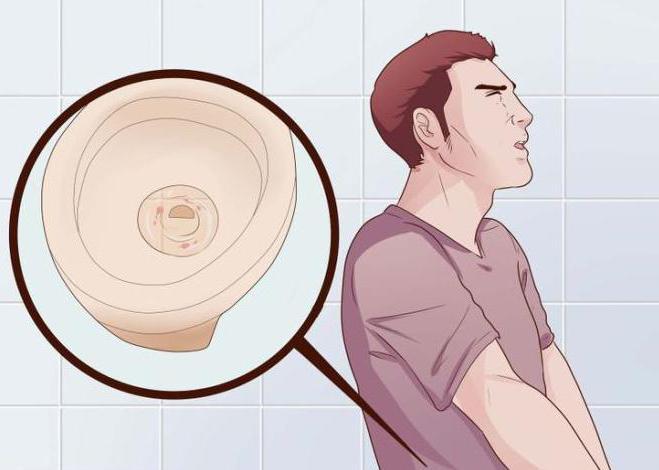 Белые выделения у мужчин без запаха опасно ли
