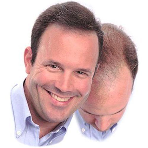 Лосьоны для волос домашние рецепты. Лосьон для укрепления и роста волос