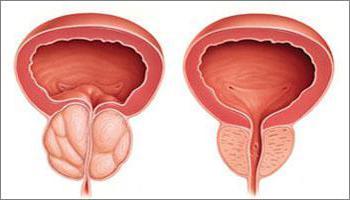 furacilin penis płukanie zły objaw erekcji