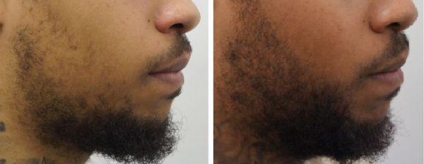 snor- baardtransplantatie
