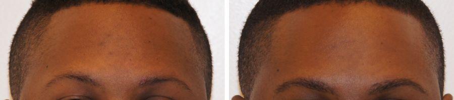 wenkbrauwtransplantatie foto's voor en na
