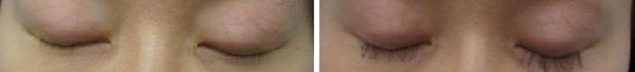 wimpertransplantatie Aziatische ogen