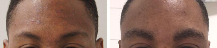 wenkbrauwtransplantatie kroeshaar voor en na