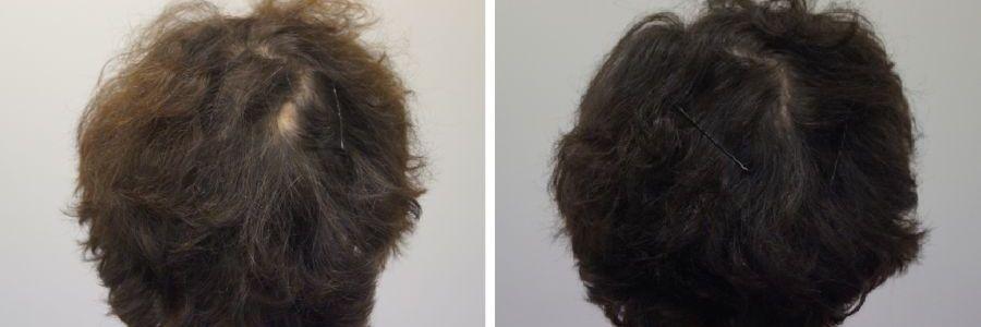 haartransplantatie op litteken