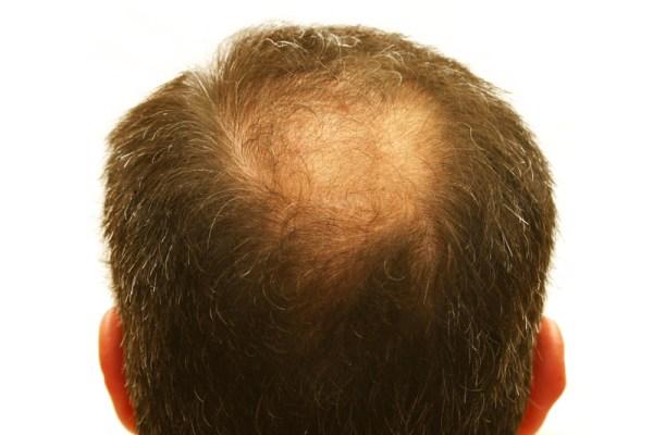 Haartransplantatie kruin