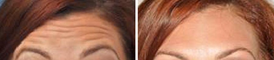 voorhoofd rimpels voor en na behandeling met botox en fillers