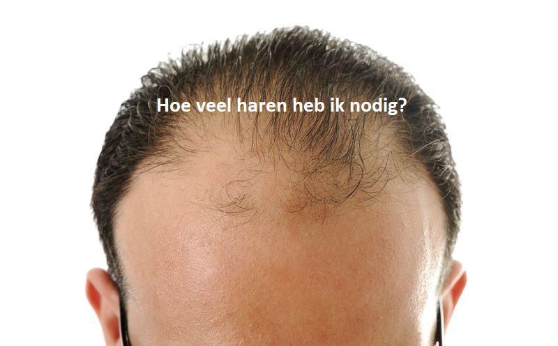 mijn haartransplantatie, hoe veel haren heb ik nodig