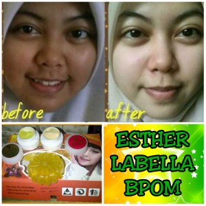 testimoni cream esther