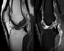 ACL tear seen on MRI. (Courtesy of Wikipedia)
