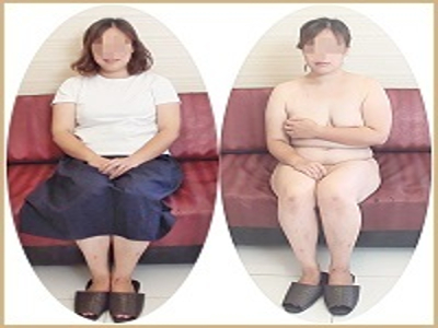 【デブス】垂れ乳&三段腹最高!!三人の子持ちデブス! 不倫主婦の性告白ドキュメンタリー