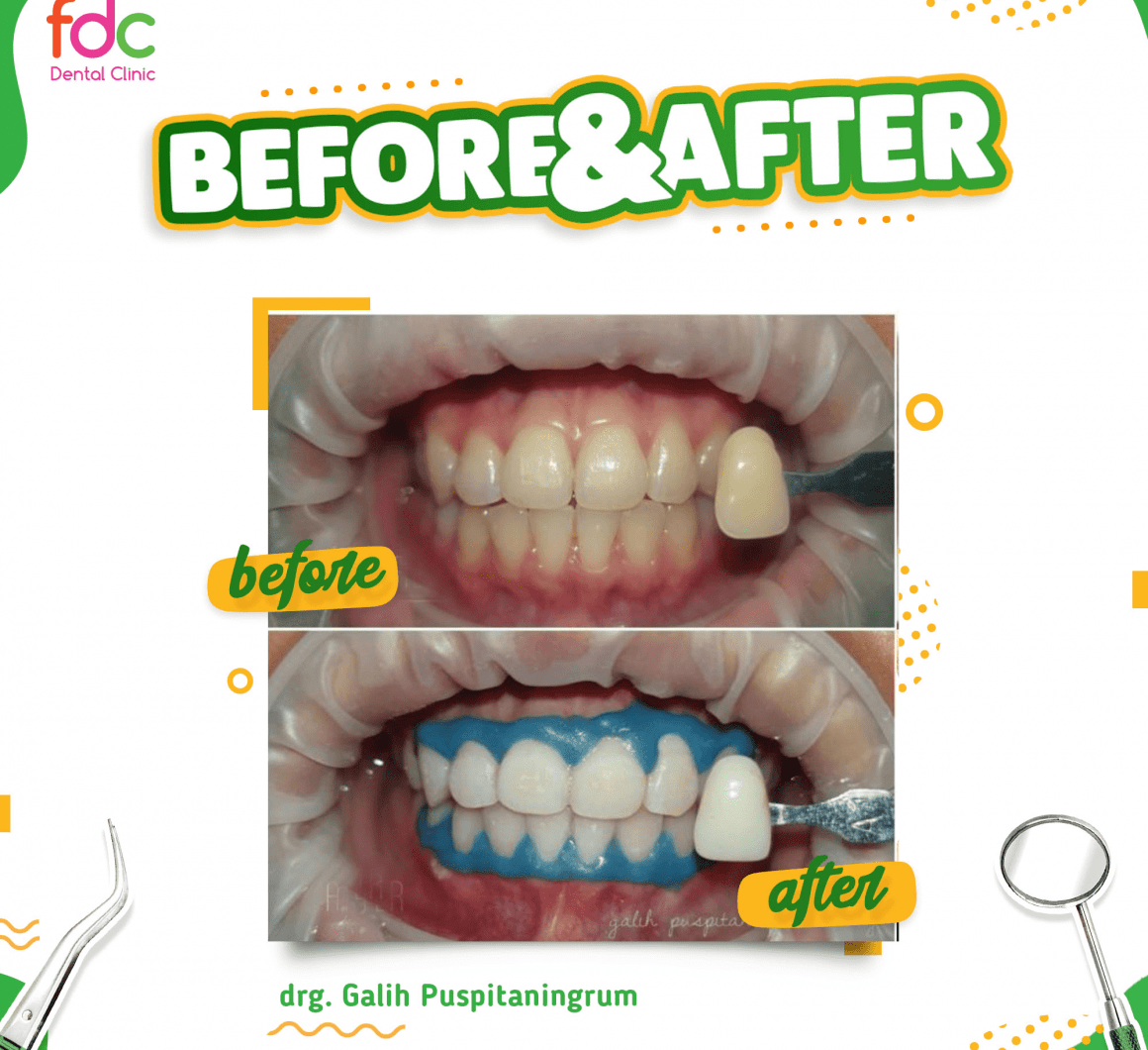 Before After Bleaching FDC Dental Clinic