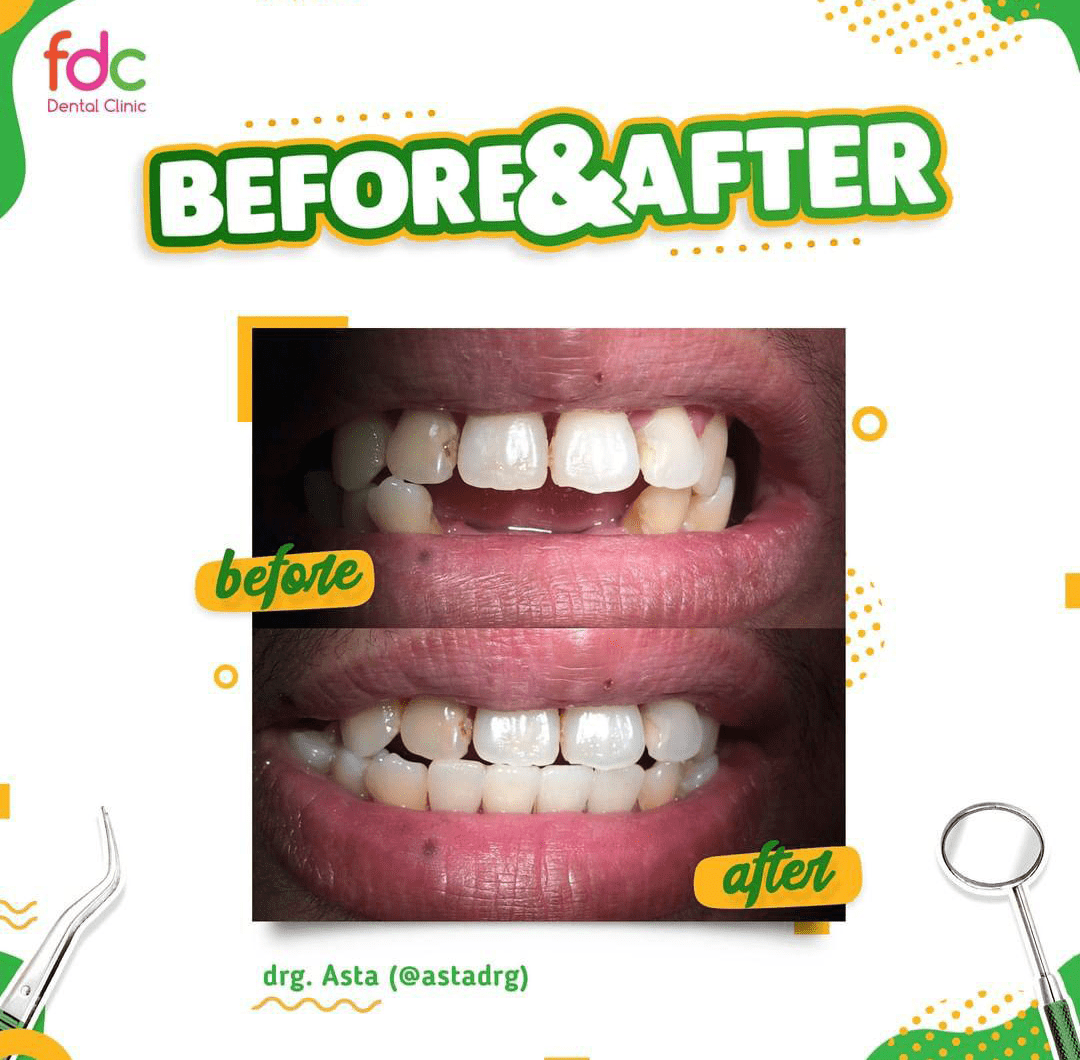 Before After FDC Dental Clinic
