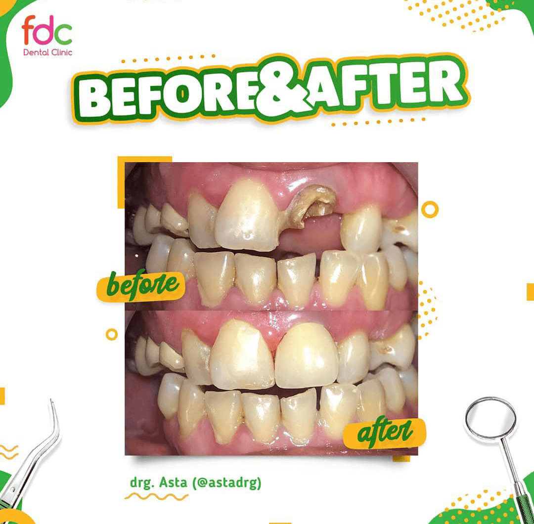 Before After Tambal FDC Dental Clinic