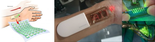 Samsung showcases a stretchable OLED skin patch