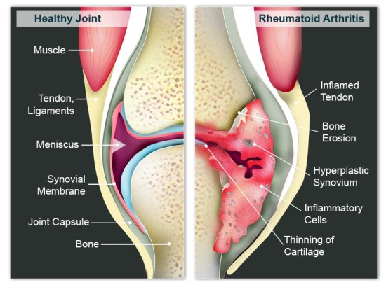 RA is a progressive disease - Arthritis (Rheumatoid ...