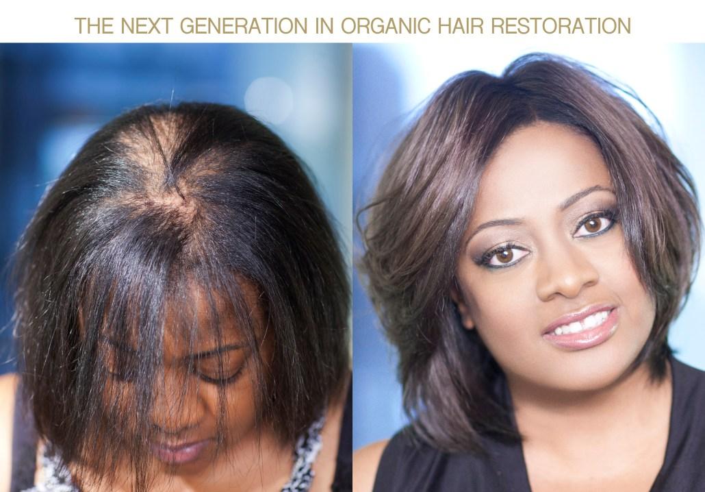 New Hair Restoration